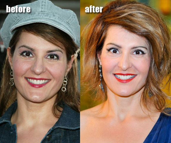 Nia Facelift and Botox