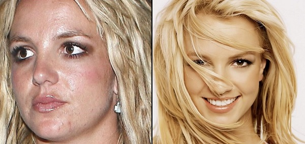 10 Beautiful Celebrities with Surprising Acne Scars ...