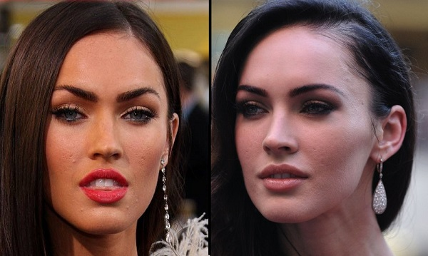 10 Beautiful Celebrities with Surprising Acne Scars - Celebrity Net ...