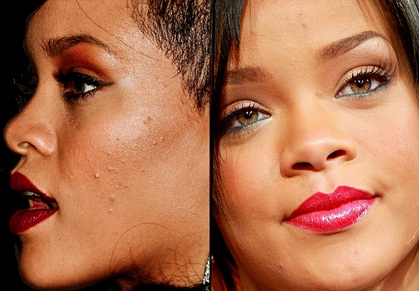 10 Beautiful Celebrities With Surprising Acne Scars Celebrity Net Worth