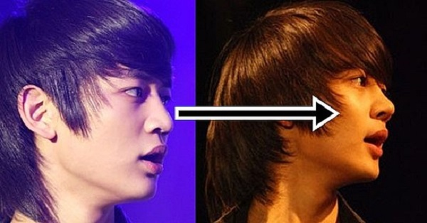 choi minho before and after plastic surgery 1
