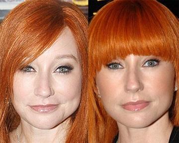 Botox and Brow Lift