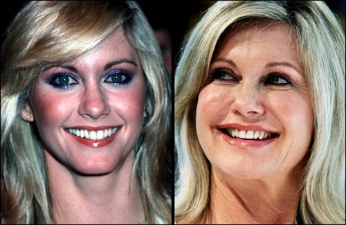 http://www.thecelebworth.com/wp-content/uploads/2013/10/Facelift3.jpg