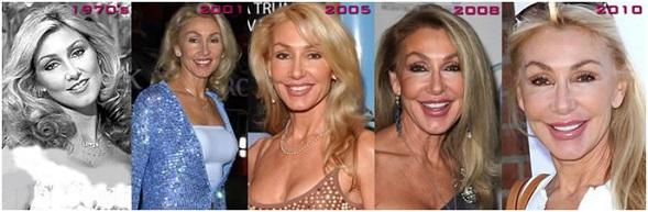 Linda Thompson Blepharoplasty or Eyelid Lift