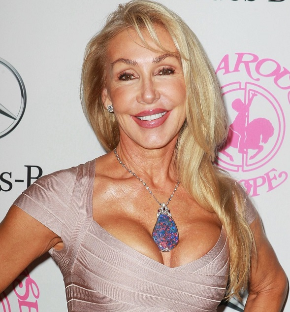 Linda Thompson Facelift and Cheek Augmentation