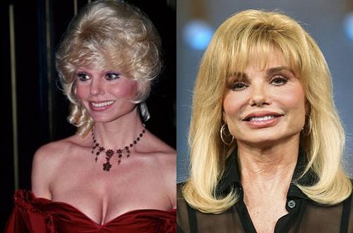 Loni Anderson Plastic Surgery - Celebrity Net Worth   500 x 331 jpeg 56kB