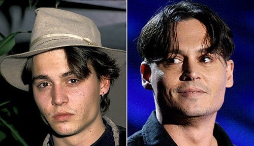 johnny-depp Facelift