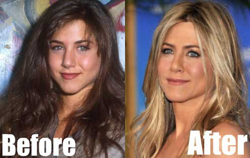 Jennifer-Aniston-Nose-Job
