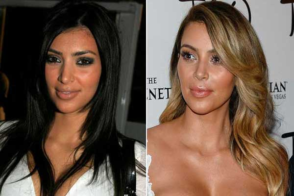 Kim-Kardashian-Nose-Job