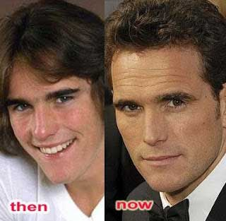 Matt-Dillon-Nose-Job