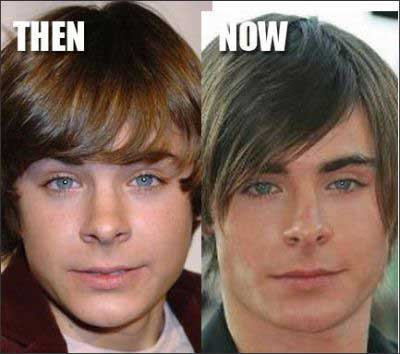 Zac-Efron-Nose-Job