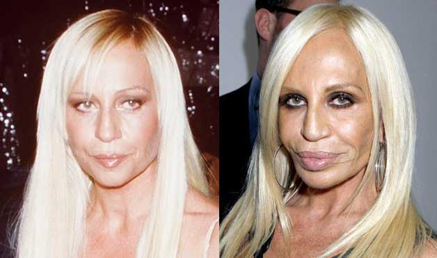 Donatella-Versace-plastic-surgery