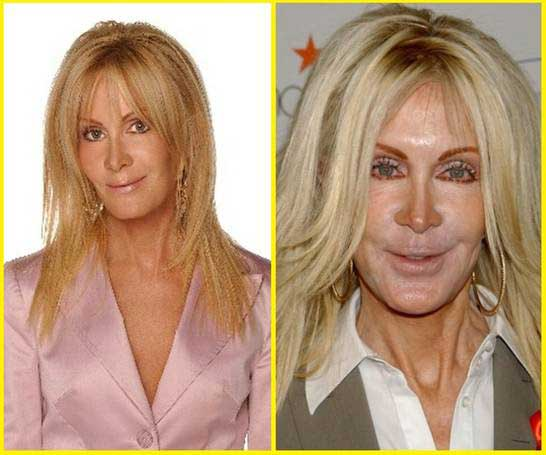 Joan-Van-Ark-plastic-surgery