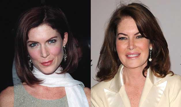 Lara-Flynn-Boyle-plastic-surgery